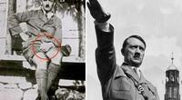 ¿Qué esconde Adolf Hitler? Un informe médico reveló un impactante secreto sobre su salud