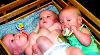 Trillizas nacieron unidas, para separarlas tuvieron que realizar peculiar operación