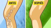 5 efectivos trucos caseros para eliminar y prevenir las varices
