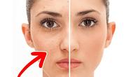 El rostro y la piel cambiarán drásticamente gracias al producto
