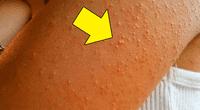 Los granitos rojos no solo aparecen por una simple alergia a los productos