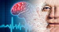 Conoce los principales síntomas de un infarto cerebral