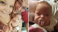 Bebé fue sometida a una reducción de 15 cm de su lengua y ahora luce así