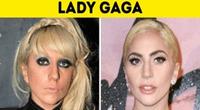 Artista cambió radicalmente de look.