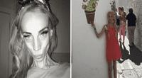 Le ganó la batalla a la anorexia y hoy luce así.