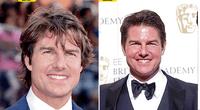 Tom Cruise es uno de los galanes más queridos, pero el bótox le jugó una mala pasada.