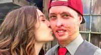 Después de un accidente que le quemó el 70% del cuerpo, él encontró el amor