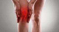 El sonido de las rodillas acompañado de dolor puede ser signo de artrosis