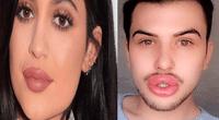 James Holt se obsesionó tanto con el grosor de sus labios que ahora su familia teme que exploten