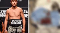 Luchador de la UFC casi pierde su miembro viril tras sufrir terrible accidente casero.
