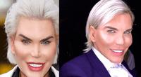 Ken humano volvió a generar polémica tras mostrar su nueva cirugía en el rostro, pese a que dijo que ya no volvería a pasar por el quirófano