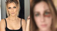 Melissa Gentz denunció a su pareja Erick Bretz por haberla maltratado y estas son las terribles secuelas.