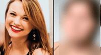 Katie Stubblefield es la persona más joven en el mundo en recibir el trasplante de cara