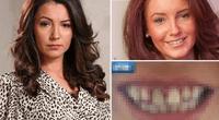 Modelo acudió a dentista por defecto bucal y terminó con los dientes retorcidos.