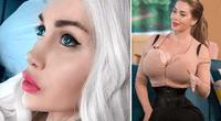 La joven de 28 años sufre de dismorfia corporal.