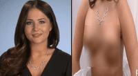 """Mujer queda con senos """"zombies"""" tras mala cirugía y ahora puede perder sus pezones."""