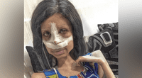 """Las escalofriantes fotos de Sahar Tabar, la Angelina Jolie """"zombie"""" tras nueva cirugía en su rostro."""
