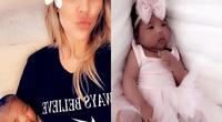 Khloe Kardashian aclara la piel de su hija con filtros y fans la critican sin piedad.