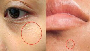 4 tipos de granitos que debes dejar de apretar o rascar, tu piel te lo agradecerá