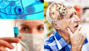 ¿Será posible curar el Alzheimer con una vacuna? Este es el último avance de la ciencia