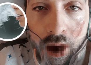 Las terribles heridas lo mantienen internado en un hospital.