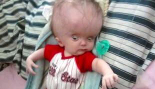 Nació con hidrocefalia y los doctores advirtieron que iba a morir, su madre demostró lo contrario