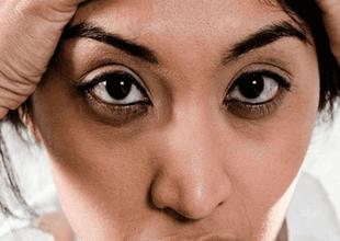 Las ojeras pueden ser síntoma de malos hábitos o de algún problema de tu organismo