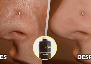 Dile adiós al acné y a los puntos negros con estos tips.