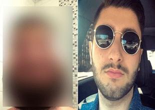 Joven terminó con la cara hinchada tras teñirse la barba en su casa