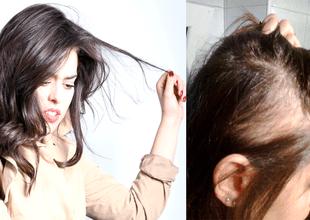 Conoce el extraño trastorno que hace que las personas que lo padecen se arranquen el cabello compulsivamente