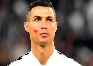 Ronaldo y todos los jugadores del fútbol italiano salieron a las canchas con una misteriosa mancha roja en la mejilla debida a una iniciativa de la ONU