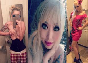 """Mujer gasta más de 35 mil dólares en cirugías para convertirse en """"Barbie"""" y así luce."""