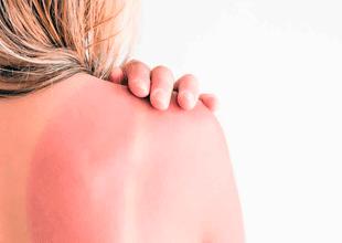 Mira una lista con 5 opciones de recetas caseras efectivas para curar las quemaduras de piel