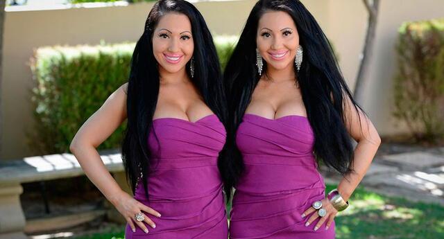 """Así lucían Anna y Lucy DeCinque antes de gastar 250 mil dólares en cirugías para ser """"idénticas"""""""