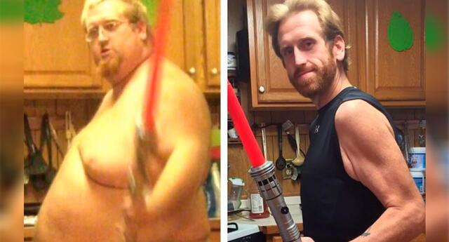 Bajó más 100 kilos en 2 años y quedó con un impactante exceso de piel