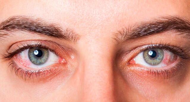 8 señales que tu salud no está bien, tus ojos pueden revelar algunas enfermedades