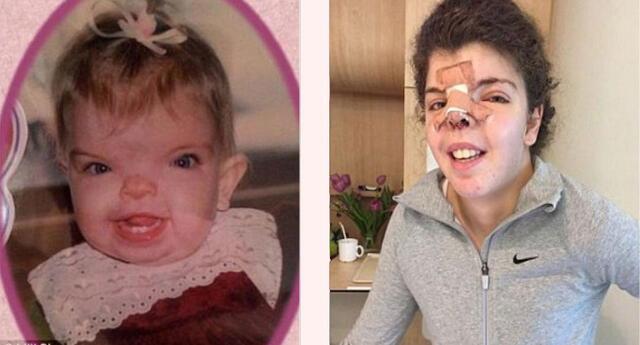 Ella nació con una desfiguración severa, tras la operación quedó así