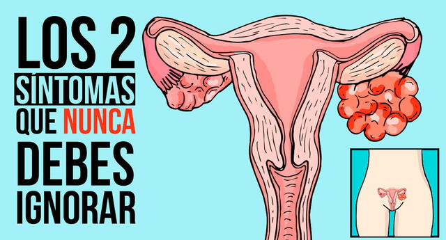 Dos síntomas claves serían la señal de un cáncer de ovario