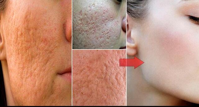 4 remedios caseros que te ayudarán a cerrar los poros de tu rostro