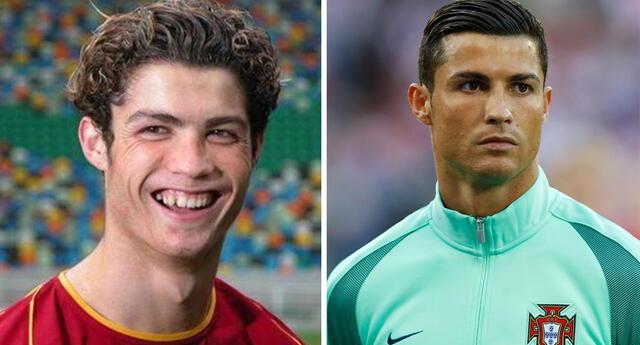 Estas cirugías transformaron a Cristiano Ronaldo.