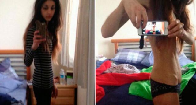 Aroosha padeció de anorexia por 7 años, el detonante fue una ruptura amorosa
