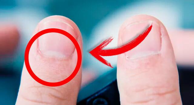 Presta mucha atención si ves estas 'medias lunas blancas' en tus uñas