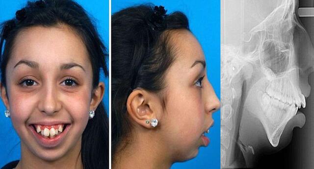 No podrás reconocer a Ellie Jones tras la operación a la mandíbula