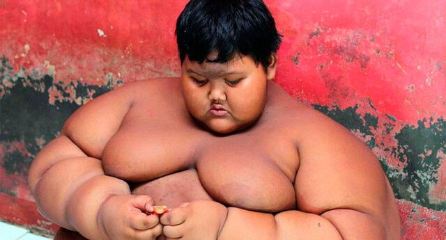 """Vive en Indonesia y es considerado """"el niño más gordo del mundo"""""""