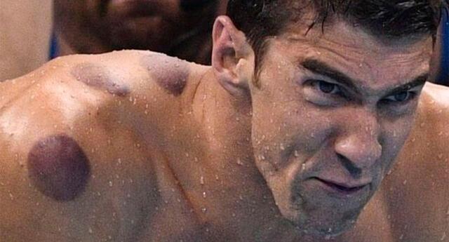 La razón de por qué la espalda de Phelps tiene círculos rojos