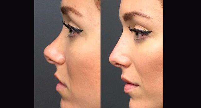 En tan solo 15 minutos luce una nariz completamente distinta