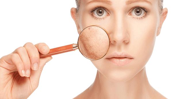 Las manchas en la piel pueden estar asociadas al estrés, exposición solar o efecto negativo de algún producto