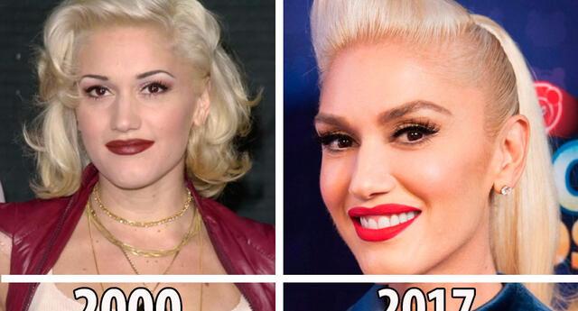 En algunos casos lucen mejor que como se veían hace más de 10 años.