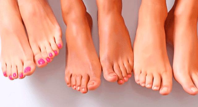 La verruga en el pie se produce por cortes en la piel.