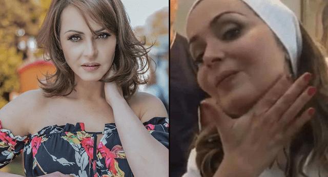 Gabriela Spanic transforma su rostro con botox y así luce a sus 44 años.